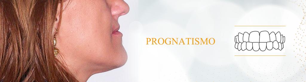 prognatismo-invisalign-odontouno